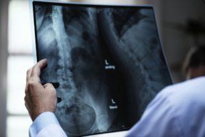ювенильный остеопороз