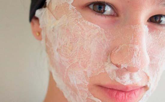 Лечение прыщей на лице при гормональном сбое