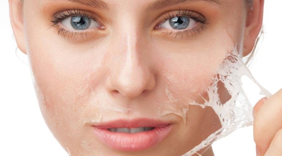 Сильно шелушится кожа лица что делать в домашних условиях