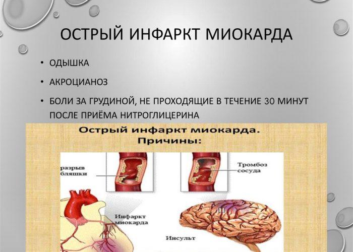 Острое течение инфаркта миокарда
