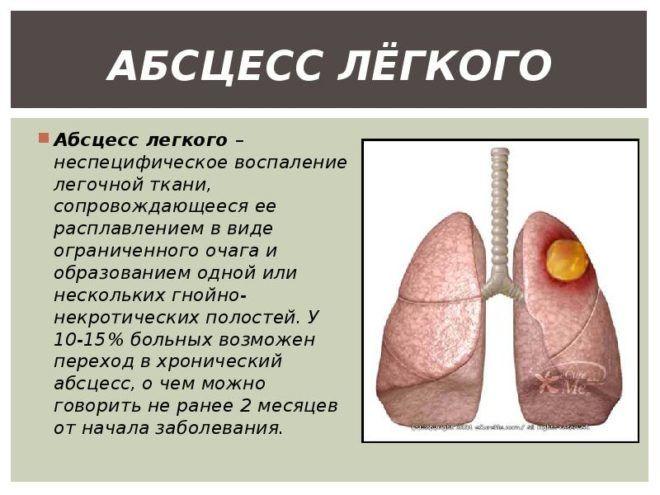 При коричневом экссудате развивается абцесс легких