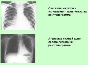 Уплотнение легких на рентгеновском изображении
