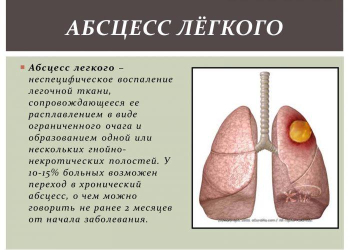 Абсцесс легких