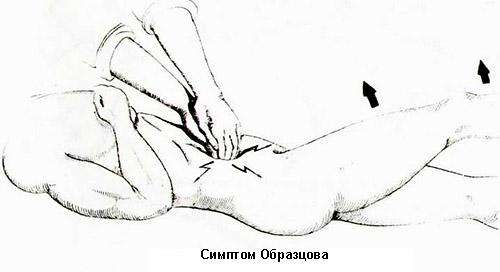 диагностика аппендицита