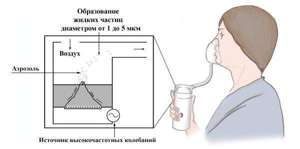 Схема проведения процедуры небулайзером