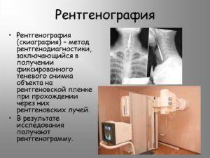 Рентгенография для выявления пневмонии