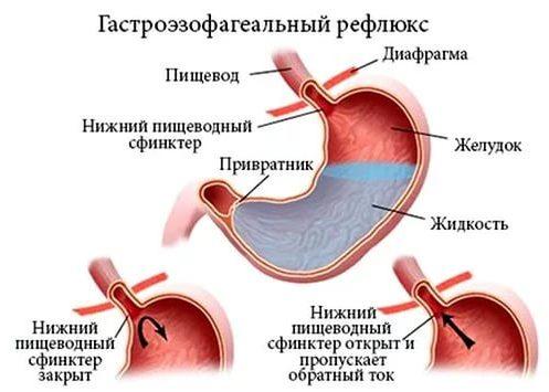 Гастроэзофагеальным рефлюксом