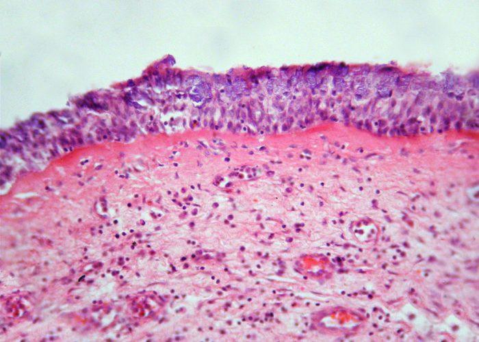 Стимулирует регенерацию клеток эпителия