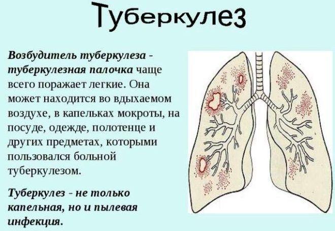 Ставить банки запрещены при туберкулезе