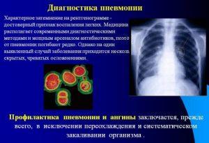 Аппаратное обследование при бронхопневмонии