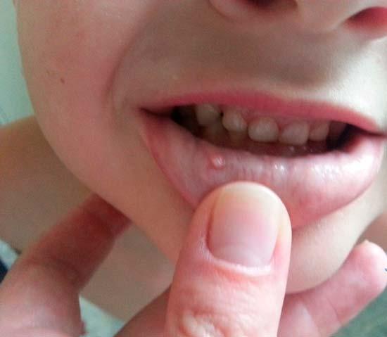 Правила лечения прыщиков на внутренней стороне губы