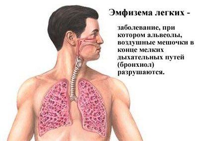 Эмфизема