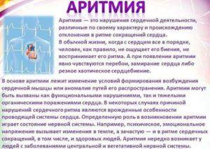 Азитромицин противопоказан при аритмии