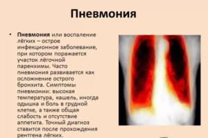 Гербион с первоцветом принимают при пневмонии