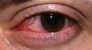 Пациентам с травмами глаза следует принимать по 2 капли