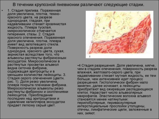 В течении крупозной пневмонии различают следующие стадии