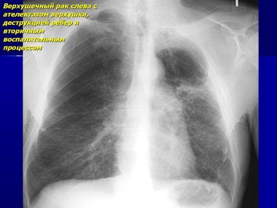 Метастатическая деструкция легких