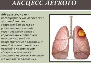 Абсцессом легких