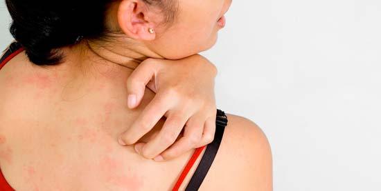 Эффективные способы лечения и профилактики прыщей на плечах