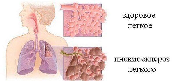 Симптомы склероза легких