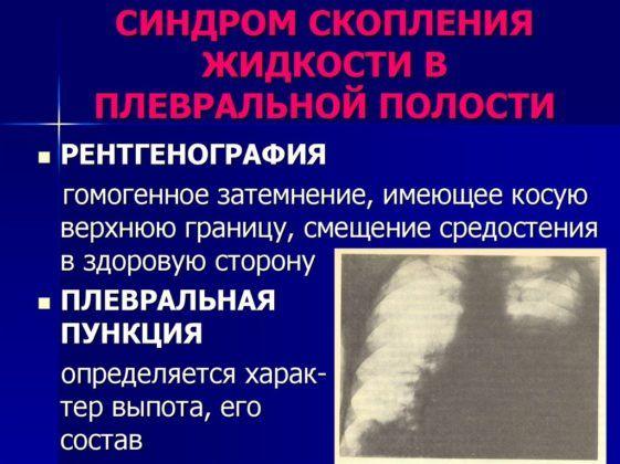 Плевральная полость на рентгене