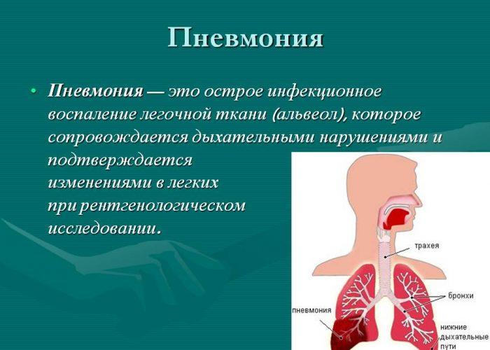 При пневмонии