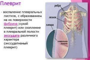 Осложнением очаговой пневмонии является плеврит