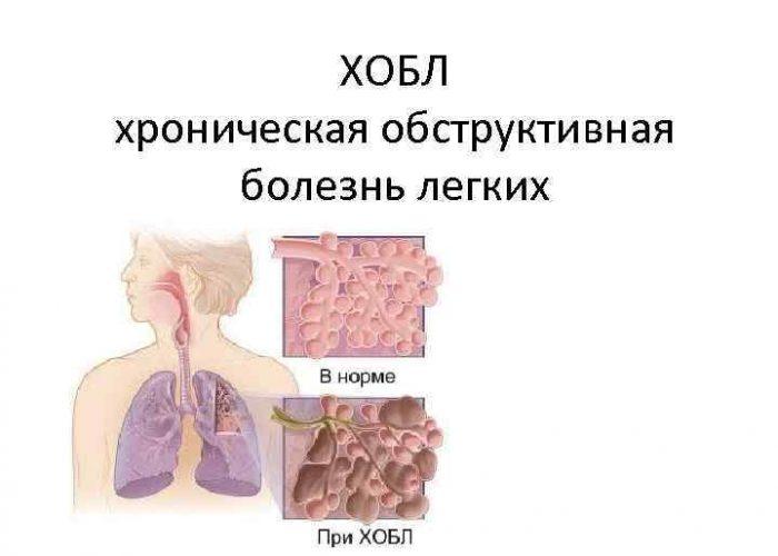 Хроническая обструктивная болезнь легких.