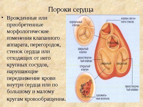 Пороки клапанов сердца