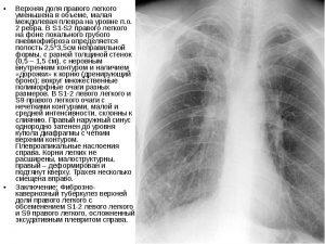 Лечение пневмосклероза легких