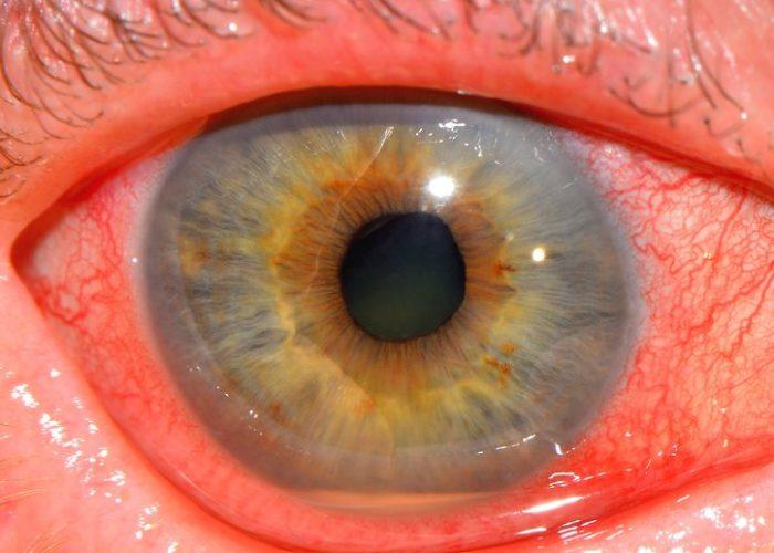 Воспаление радужной оболочки глазного яблока