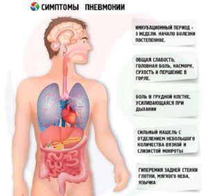 Клинические признаки воспаления легких
