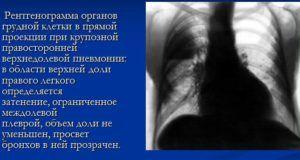 Крупозная пневмония