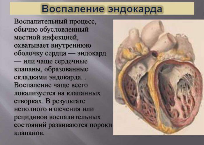 Воспаление эндокарда
