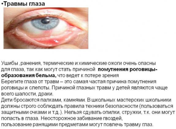 Причины возникновения травм глаза