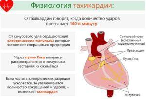 Тахикардия является симптомом сердечного кашля