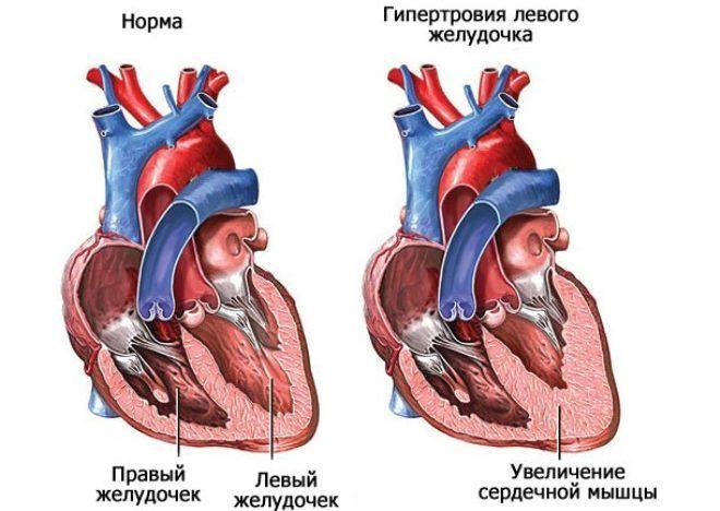 Вечерний синдром сопровождается хронической недостаточностью левого желудочка