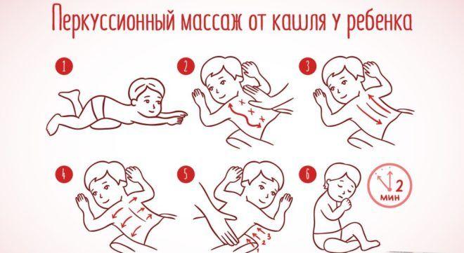 Схема перкуссионного массажа
