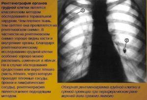 Рентгенография для диагностики очагов