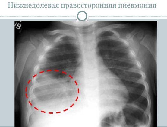 Правосторонняя бронхопневмония