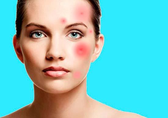 Убираем воспаление с кожи лица