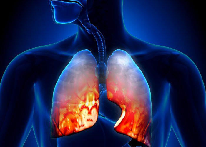 Воспалительные заболевания органов дыхания