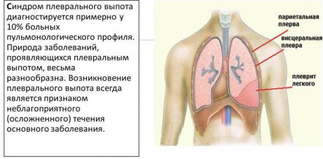 Синдром плеврального выпота