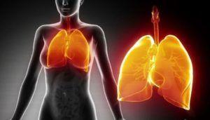 Осложнения при пневмонии психического характера