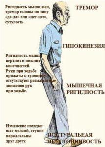 болезнь паркинсона