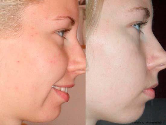 Очищаем лицо дегтярным мылом — эффективно и недорого