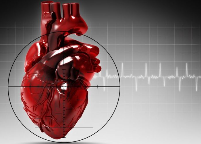 Профилактика повторного инфаркта миокарда