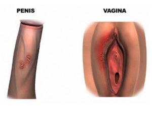 половой герпес
