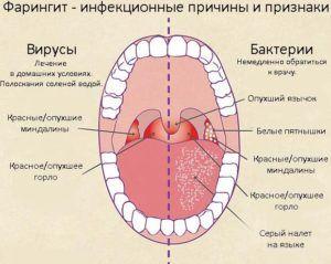 Фарингит является признаком хламидийной пневмонии
