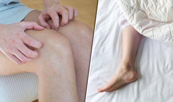 Синдром беспокойных ног: симптомы, лечение в домашних условиях